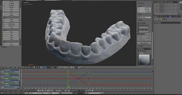 3d-printed-braces-amos-dudley-11
