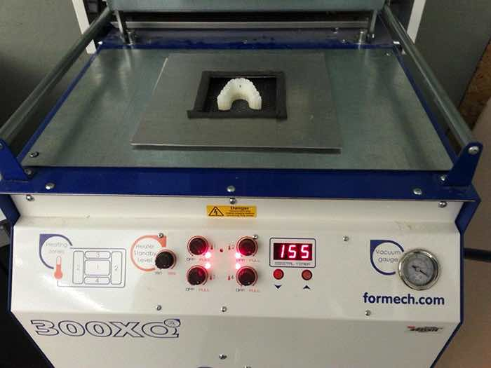 3d-printed-braces-amos-dudley-13