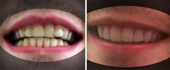 3d-printed-braces-amos-dudley-16