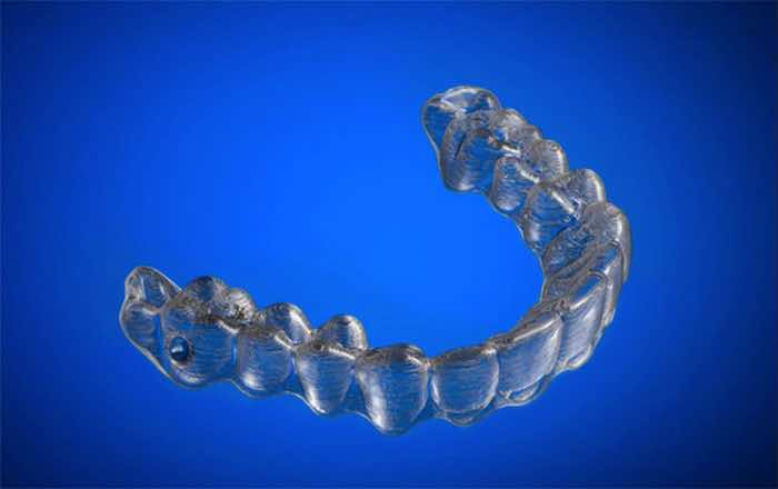 3d-printed-braces-amos-dudley-6