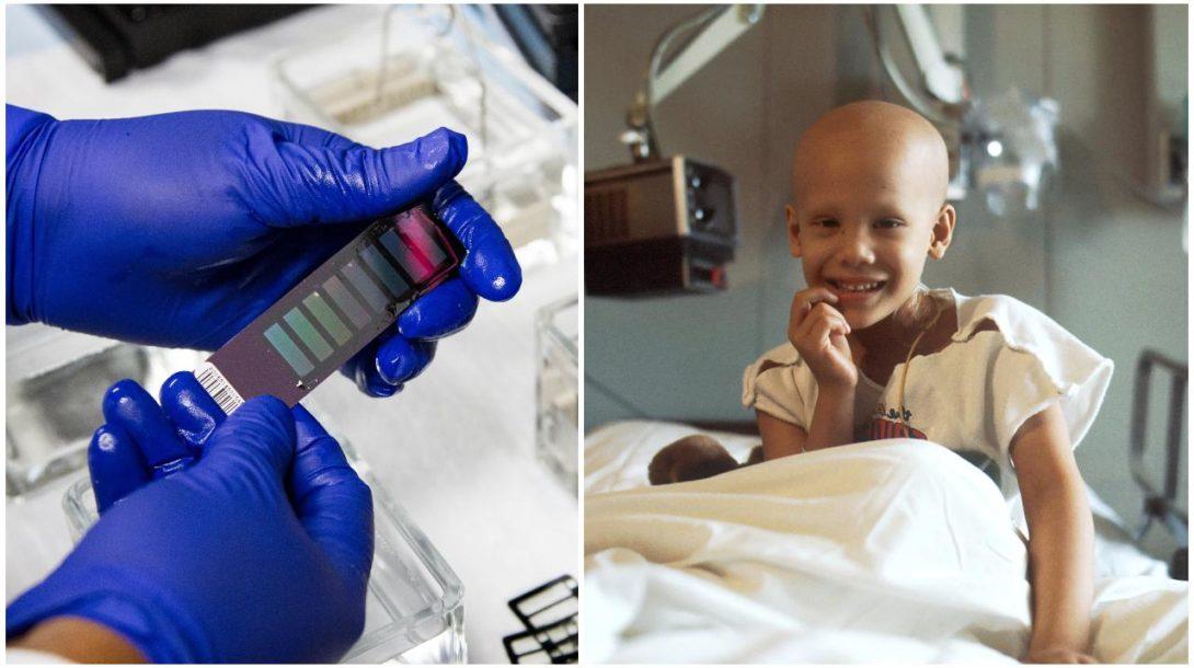 Rakovina test