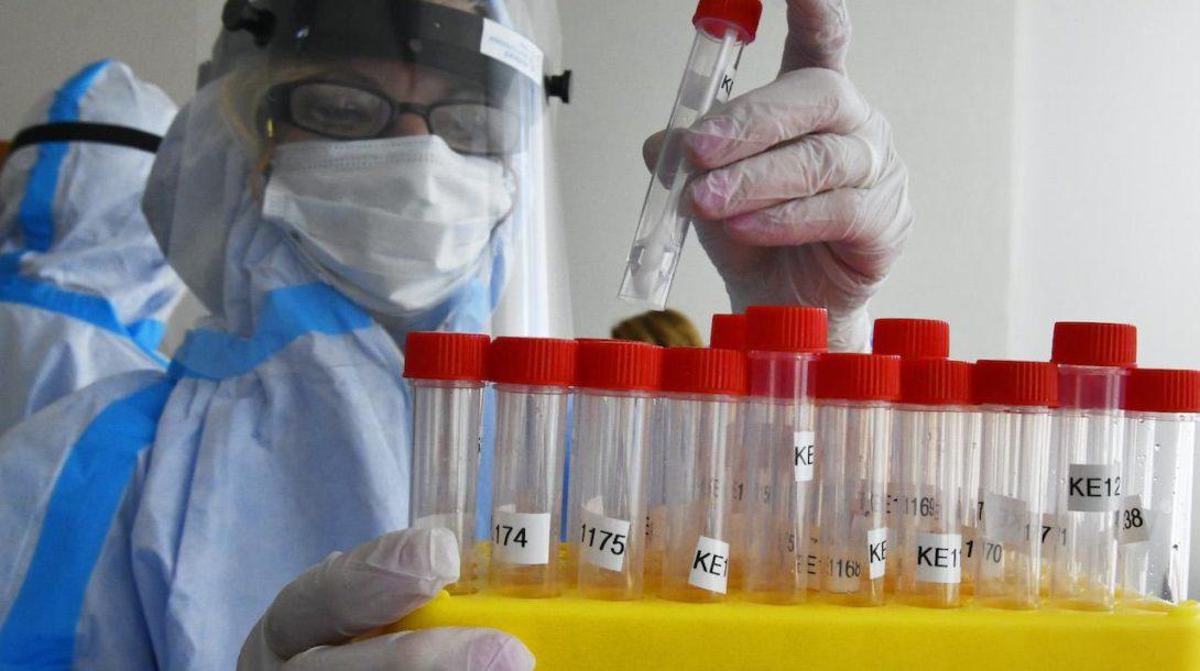 koronavírus testovanie laboratórium