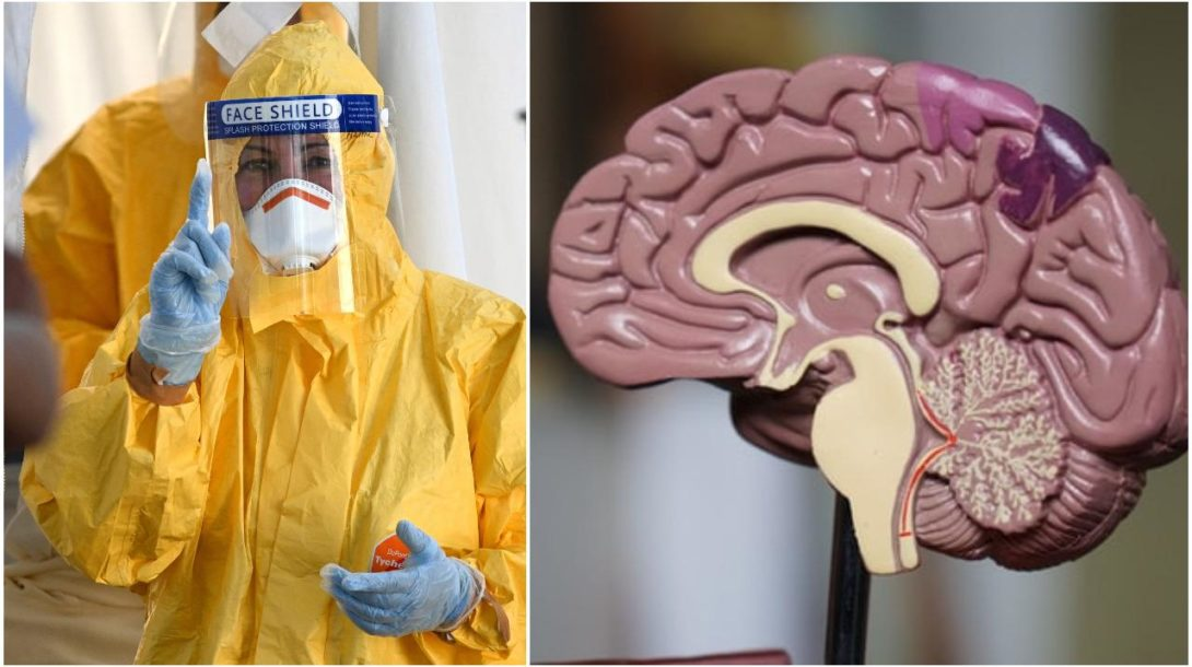COVID-19 mozog