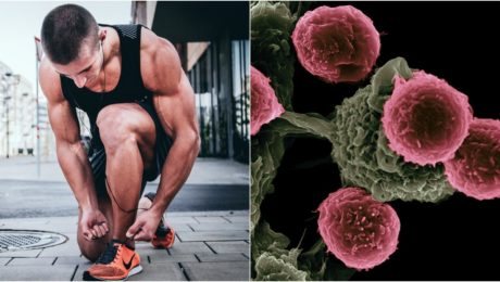 športovec viazanie šnúrok na topánkach rakovina bunky