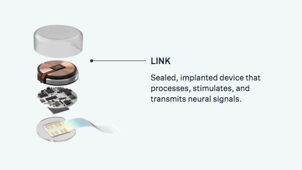 Neuralink implantát