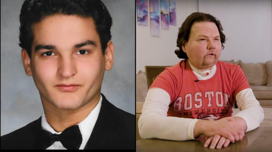 Joe pred nehodou a po operácii