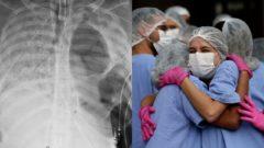 pľúca COVID-19, sestričky v objatí