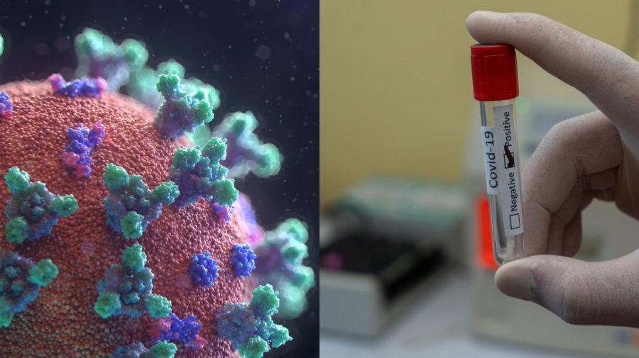 koronavírus, PCR