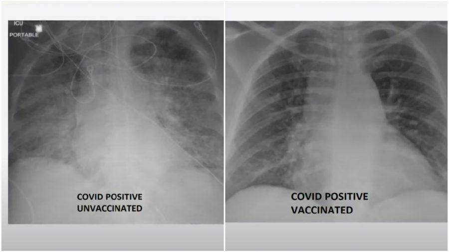 COVID lung