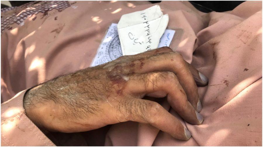 Kabul victim