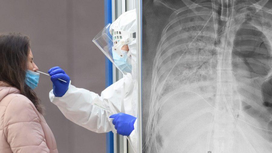 Na snímke z júna 2020  je röntgen hrude pacientky s infekčným ochorením COVID-19