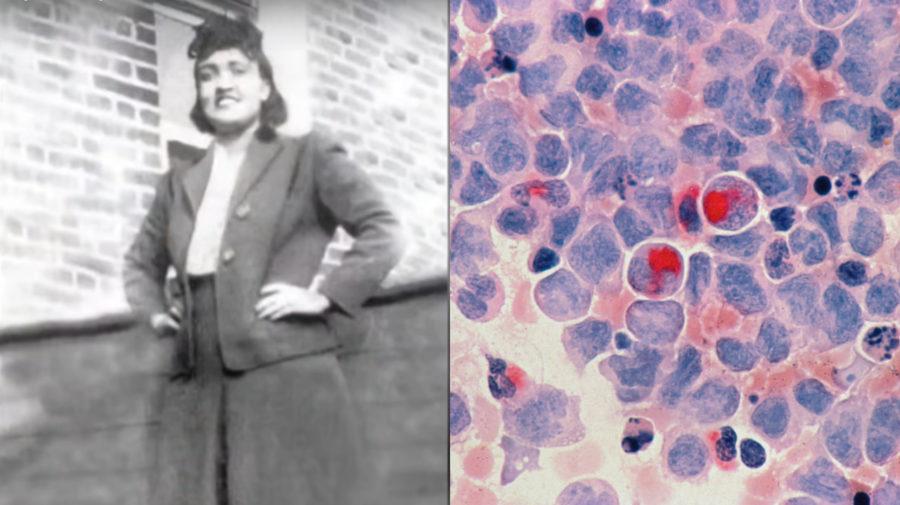Henrietta Lacks, bunky
